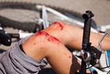 Vážně zraněný při střetu cyklistů v Ostravě