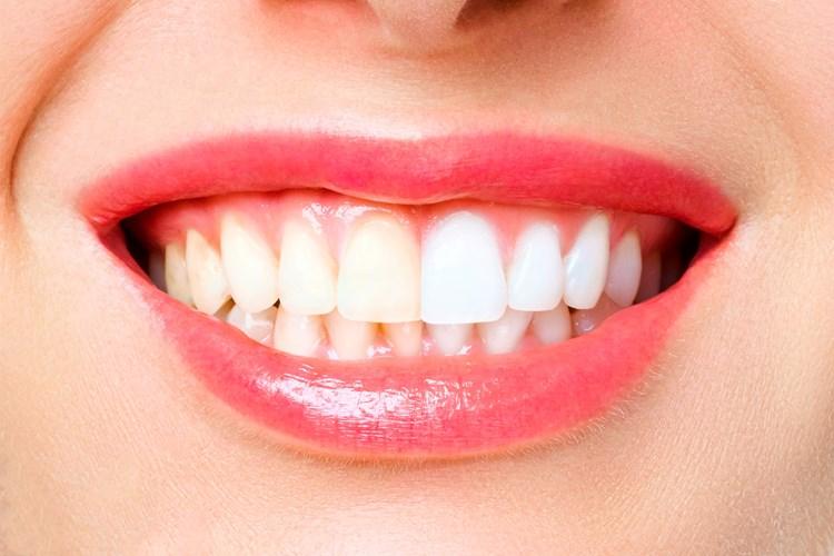 Bílé zuby nejsou samozřejmostí. Jak si dopomoci k zářivému úsměvu?